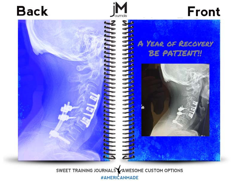 blue and white rehab journal with custom image and text